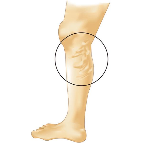 下肢静脈瘤の代表的なタイプ